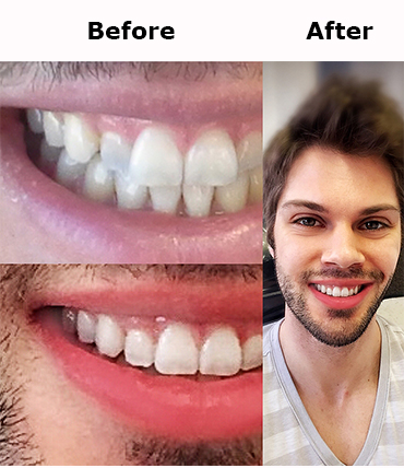 Invisalign_express_treatment.jpg